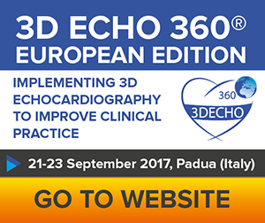 3D ECHO 360_small